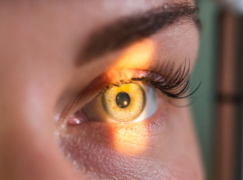 Glaucoma Treatment - How to Treat Your Glaucoma